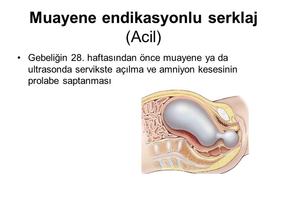 Muayene endikasyonlu serklaj (Acil) Gebeliğin 28. haftasından önce muayene ya da ultrasonda servikste açılma ve amniyon kesesinin prolabe saptanması
