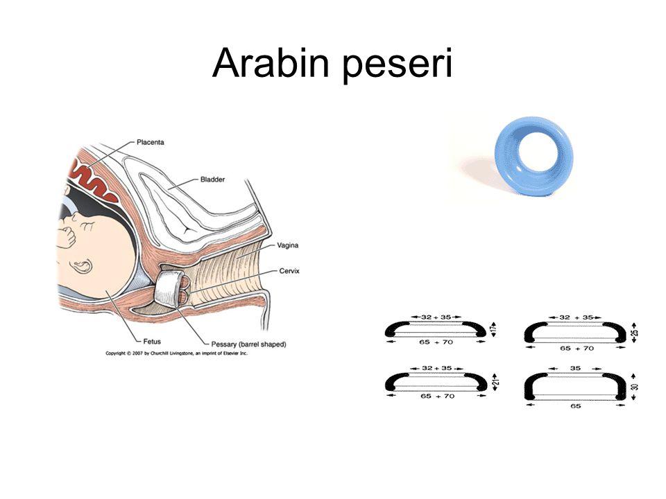 Arabin peseri