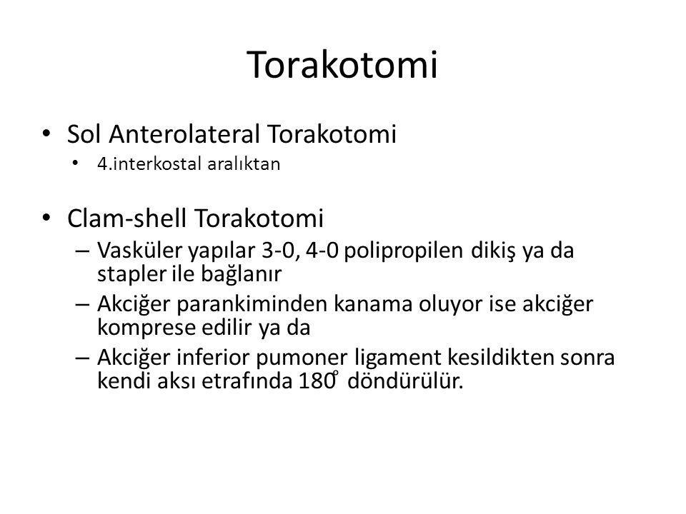 Torakotomi Sol Anterolateral Torakotomi 4.interkostal aralıktan Clam-shell Torakotomi – Vasküler yapılar 3-0, 4-0 polipropilen dikiş ya da stapler ile bağlanır – Akciğer parankiminden kanama oluyor ise akciğer komprese edilir ya da – Akciğer inferior pumoner ligament kesildikten sonra kendi aksı etrafında 180 ͦ döndürülür.