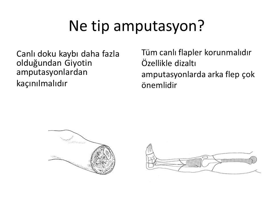 Ne tip amputasyon.