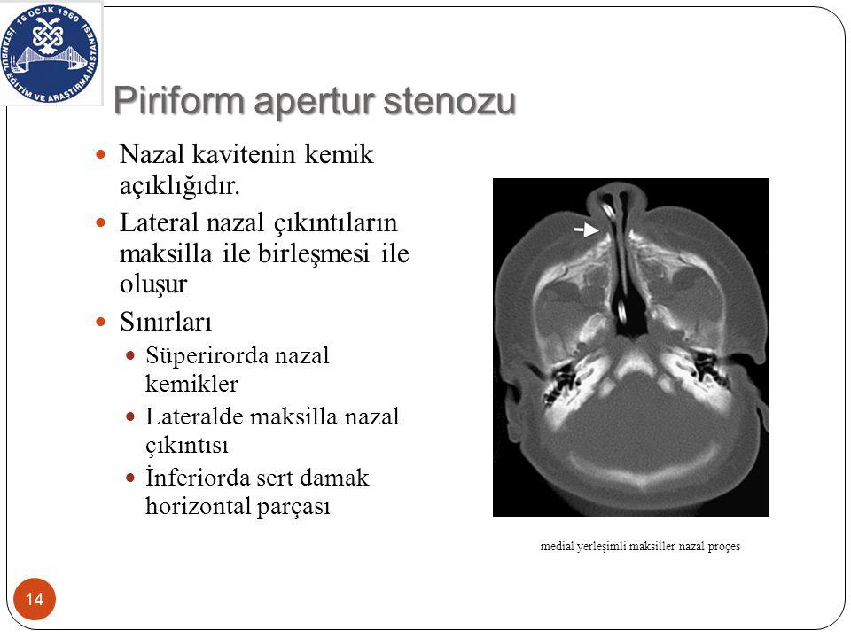 Piriform apertur stenozu Nazal kavitenin kemik açıklığıdır.