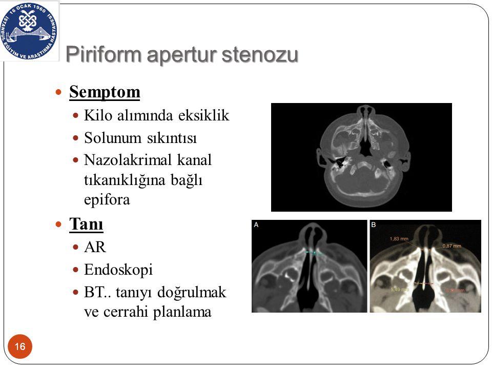 Piriform apertur stenozu 16 Semptom Kilo alımında eksiklik Solunum sıkıntısı Nazolakrimal kanal tıkanıklığına bağlı epifora Tanı AR Endoskopi BT..