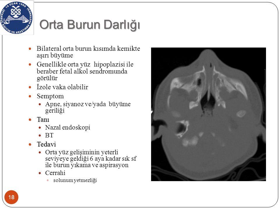 Orta Burun Darlığı Bilateral orta burun kısımda kemikte aşırı büyüme Genellikle orta yüz hipoplazisi ile beraber fetal alkol sendromunda görülür İzole vaka olabilir Semptom Apne, siyanoz ve/yada büyüme geriliği Tanı Tanı Nazal endoskopi BT Tedavi Tedavi Orta yüz gelişiminin yeterli seviyeye geldiği 6 aya kadar sık sf ile burun yıkama ve aspirasyon Cerrahi solunum yetmezliği 18