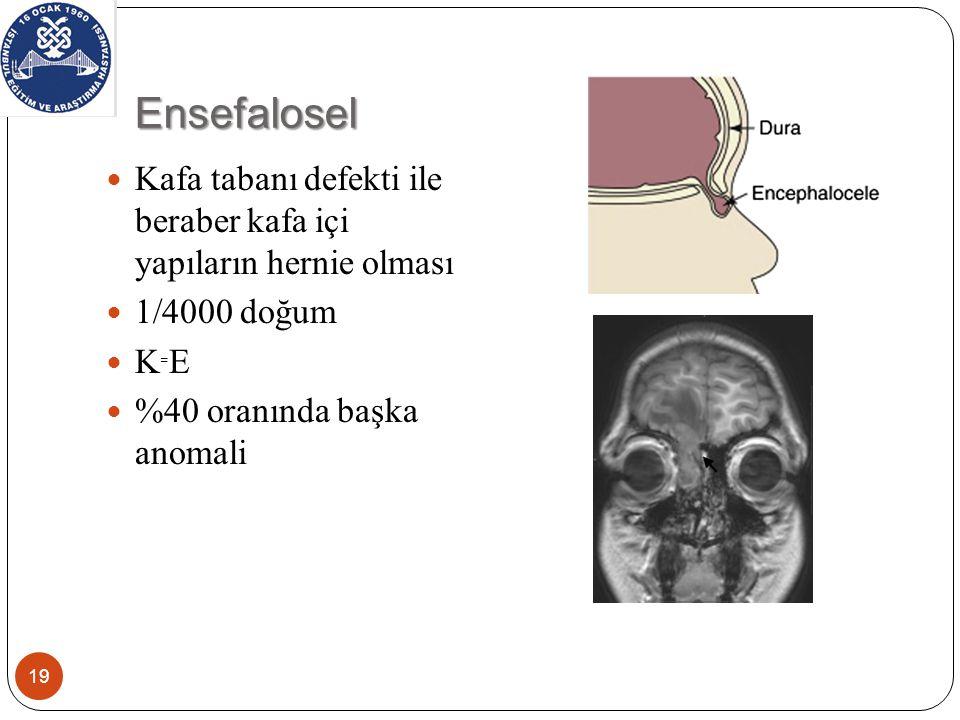 Ensefalosel 19 Kafa tabanı defekti ile beraber kafa içi yapıların hernie olması 1/4000 doğum K ₌ E %40 oranında başka anomali
