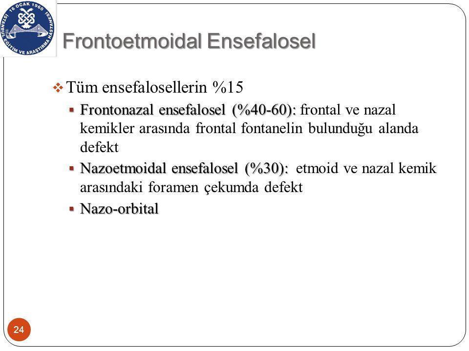Frontoetmoidal Ensefalosel 24  Tüm ensefalosellerin %15  Frontonazal ensefalosel (%40-60):  Frontonazal ensefalosel (%40-60): frontal ve nazal kemikler arasında frontal fontanelin bulunduğu alanda defekt  Nazoetmoidal ensefalosel (%30):  Nazoetmoidal ensefalosel (%30): etmoid ve nazal kemik arasındaki foramen çekumda defekt  Nazo-orbital