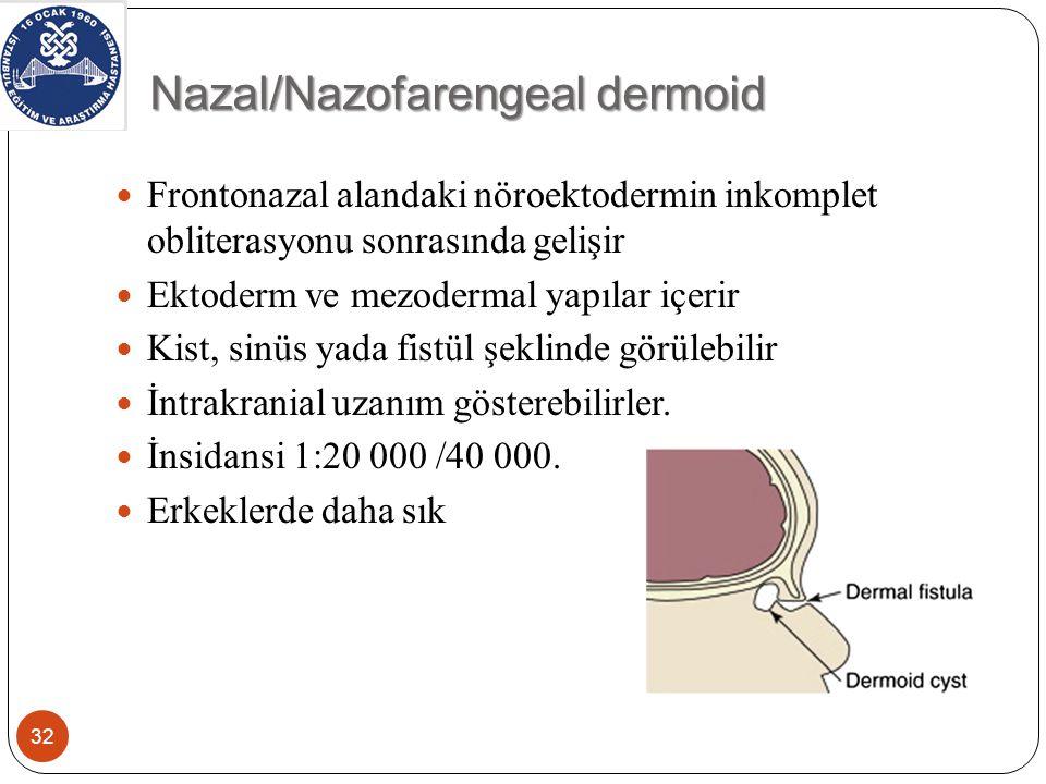 Nazal/Nazofarengeal dermoid 32 Frontonazal alandaki nöroektodermin inkomplet obliterasyonu sonrasında gelişir Ektoderm ve mezodermal yapılar içerir Kist, sinüs yada fistül şeklinde görülebilir İntrakranial uzanım gösterebilirler.