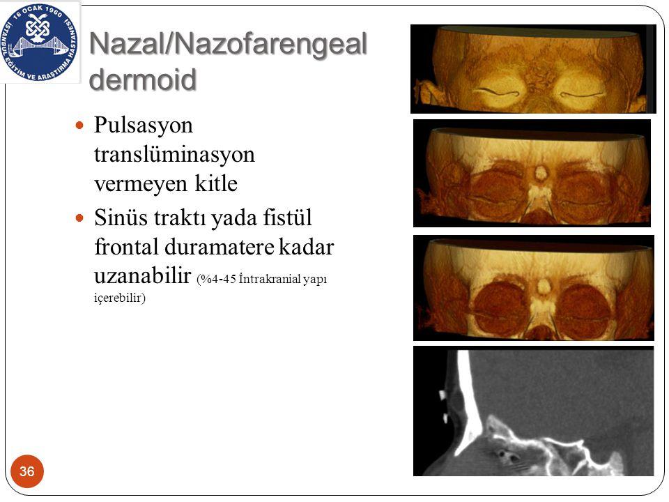 Nazal/Nazofarengeal dermoid 36 Pulsasyon translüminasyon vermeyen kitle Sinüs traktı yada fistül frontal duramatere kadar uzanabilir (%4-45 İntrakranial yapı içerebilir)