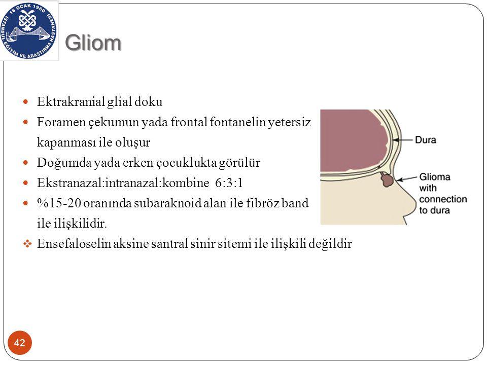 Gliom Ektrakranial glial doku Foramen çekumun yada frontal fontanelin yetersiz kapanması ile oluşur Doğumda yada erken çocuklukta görülür Ekstranazal:intranazal:kombine 6:3:1 %15-20 oranında subaraknoid alan ile fibröz band ile ilişkilidir.