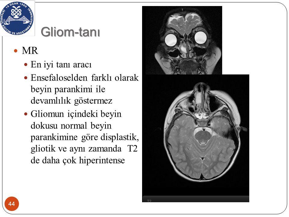 Gliom-tanı 44 MR En iyi tanı aracı Ensefaloselden farklı olarak beyin parankimi ile devamlılık göstermez Gliomun içindeki beyin dokusu normal beyin parankimine göre displastik, gliotik ve aynı zamanda T2 de daha çok hiperintense