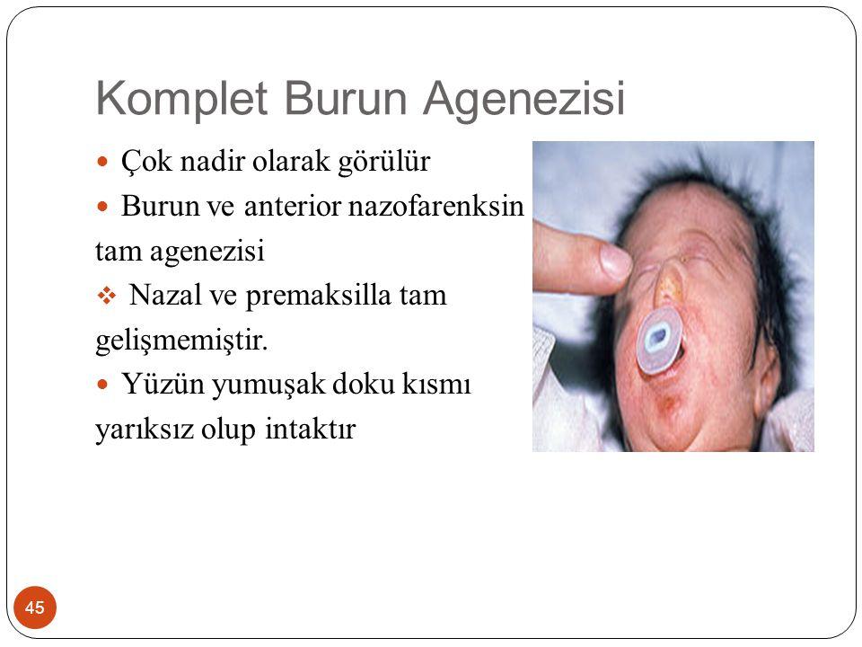 Komplet Burun Agenezisi 45 Çok nadir olarak görülür Burun ve anterior nazofarenksin tam agenezisi  Nazal ve premaksilla tam gelişmemiştir.