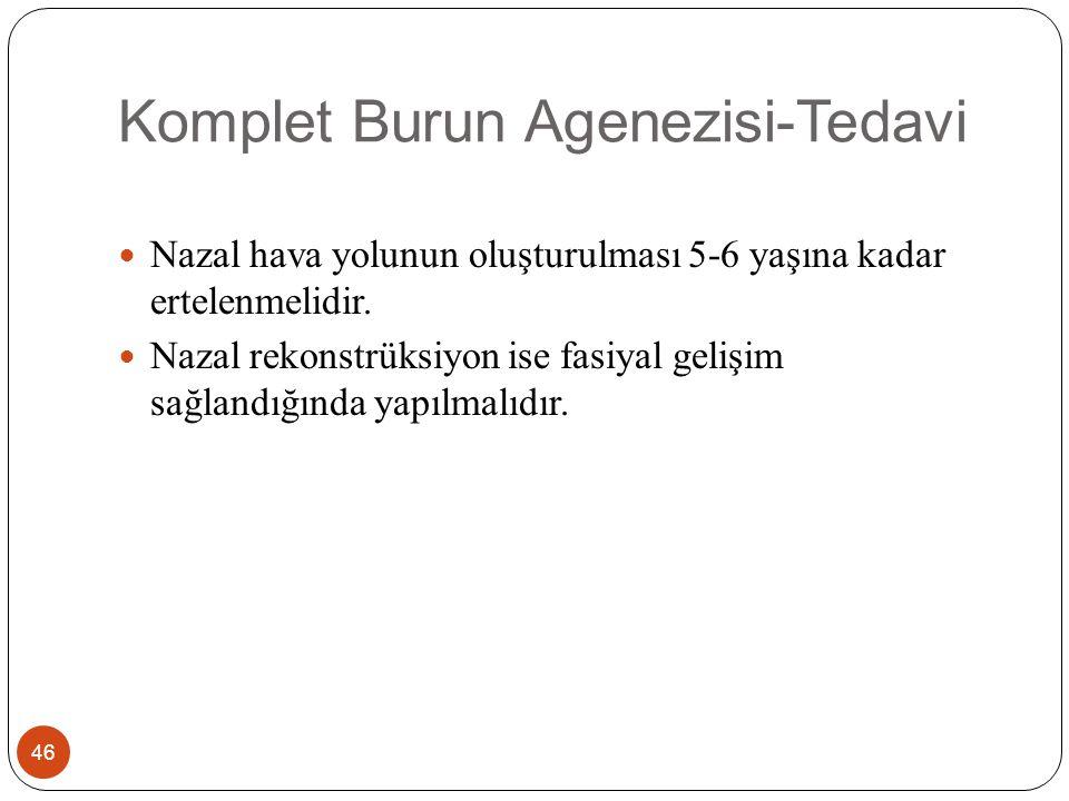Komplet Burun Agenezisi-Tedavi 46 Nazal hava yolunun oluşturulması 5-6 yaşına kadar ertelenmelidir.