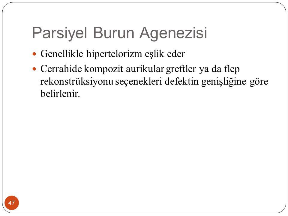 Parsiyel Burun Agenezisi 47 Genellikle hipertelorizm eşlik eder Cerrahide kompozit aurikular greftler ya da flep rekonstrüksiyonu seçenekleri defektin genişliğine göre belirlenir.