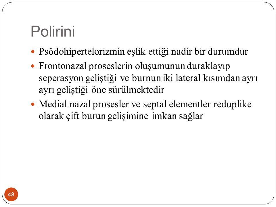 Polirini 48 Psödohipertelorizmin eşlik ettiği nadir bir durumdur Frontonazal proseslerin oluşumunun duraklayıp seperasyon geliştiği ve burnun iki lateral kısımdan ayrı ayrı geliştiği öne sürülmektedir Medial nazal prosesler ve septal elementler reduplike olarak çift burun gelişimine imkan sağlar