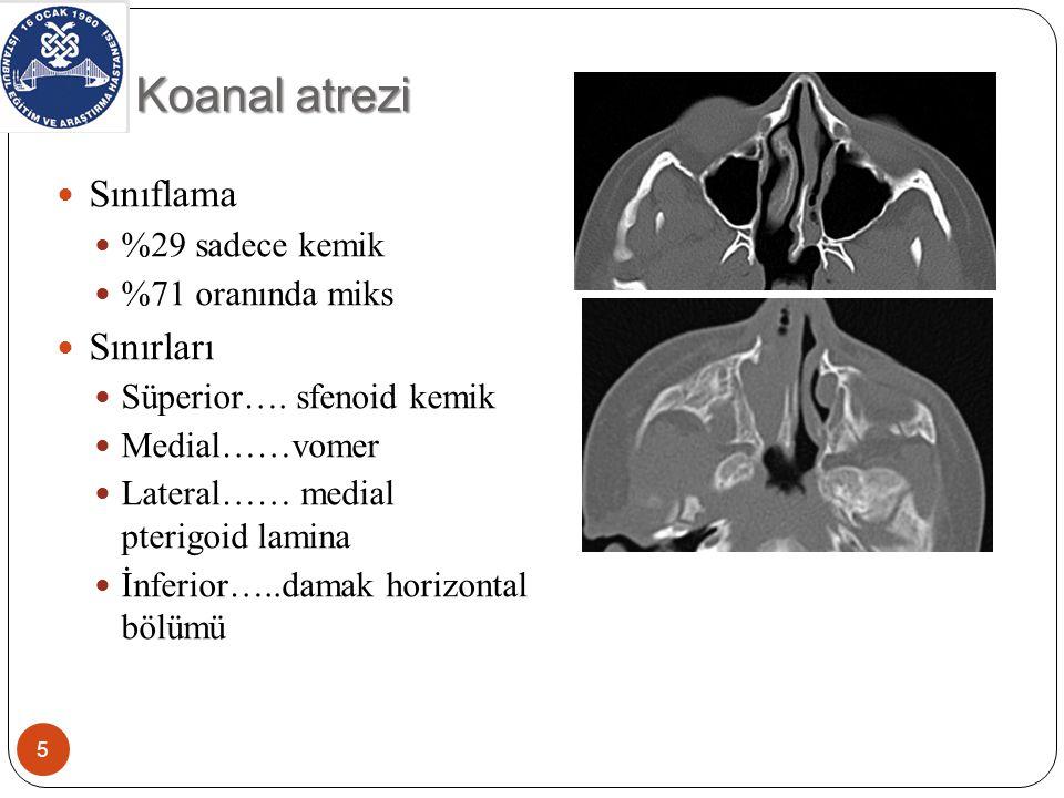 Koanal atrezi 5 Sınıflama %29 sadece kemik %71 oranında miks Sınırları Süperior….