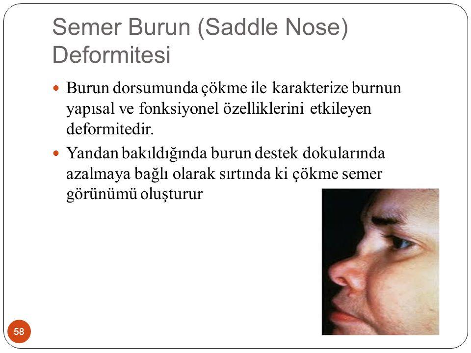 Semer Burun (Saddle Nose) Deformitesi 58 Burun dorsumunda çökme ile karakterize burnun yapısal ve fonksiyonel özelliklerini etkileyen deformitedir.