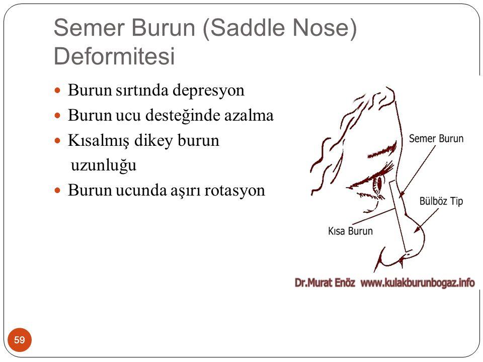 Semer Burun (Saddle Nose) Deformitesi 59 Burun sırtında depresyon Burun ucu desteğinde azalma Kısalmış dikey burun uzunluğu Burun ucunda aşırı rotasyon