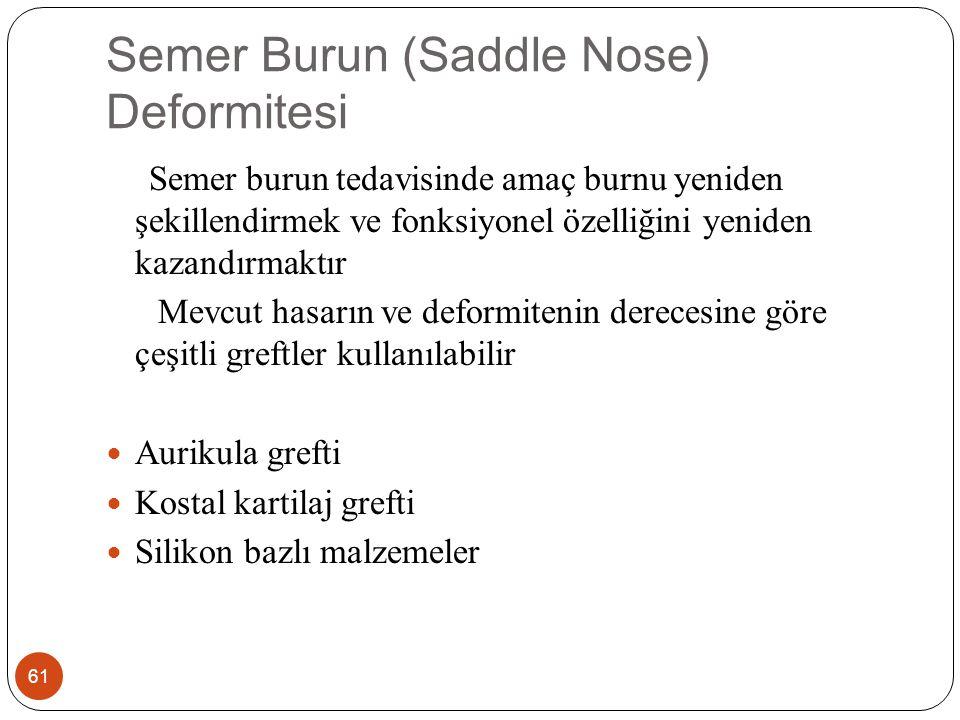 Semer Burun (Saddle Nose) Deformitesi 61 Semer burun tedavisinde amaç burnu yeniden şekillendirmek ve fonksiyonel özelliğini yeniden kazandırmaktır Mevcut hasarın ve deformitenin derecesine göre çeşitli greftler kullanılabilir Aurikula grefti Kostal kartilaj grefti Silikon bazlı malzemeler