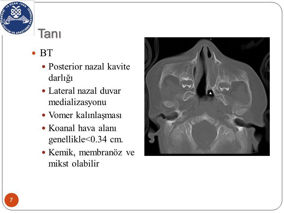Tanı BT Posterior nazal kavite darlığı Lateral nazal duvar medializasyonu Vomer kalınlaşması Koanal hava alanı genellikle<0.34 cm.