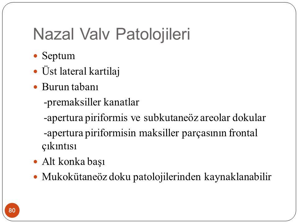 Nazal Valv Patolojileri 80 Septum Üst lateral kartilaj Burun tabanı -premaksiller kanatlar -apertura piriformis ve subkutaneöz areolar dokular -apertura piriformisin maksiller parçasının frontal çıkıntısı Alt konka başı Mukokütaneöz doku patolojilerinden kaynaklanabilir