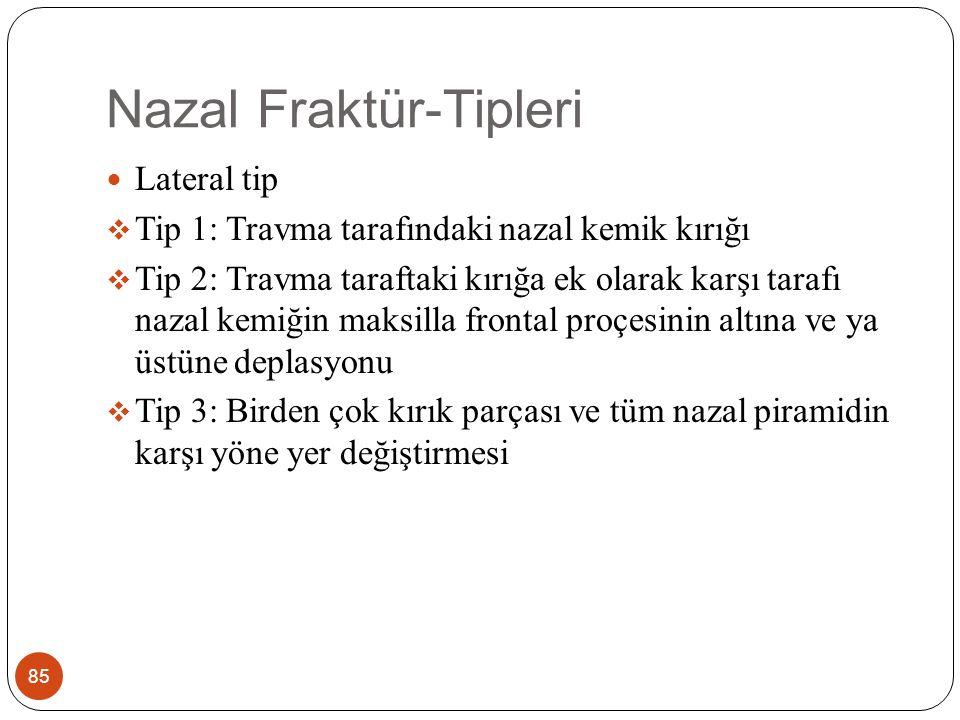 Nazal Fraktür-Tipleri 85 Lateral tip  Tip 1: Travma tarafındaki nazal kemik kırığı  Tip 2: Travma taraftaki kırığa ek olarak karşı tarafı nazal kemiğin maksilla frontal proçesinin altına ve ya üstüne deplasyonu  Tip 3: Birden çok kırık parçası ve tüm nazal piramidin karşı yöne yer değiştirmesi