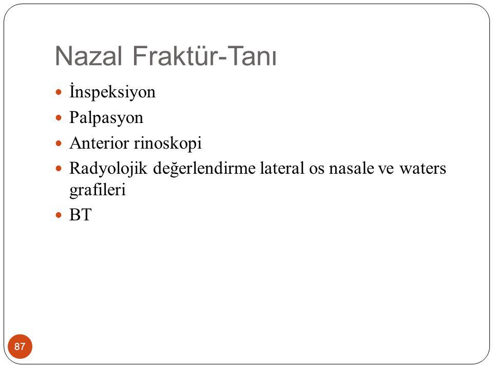 Nazal Fraktür-Tanı 87 İnspeksiyon Palpasyon Anterior rinoskopi Radyolojik değerlendirme lateral os nasale ve waters grafileri BT