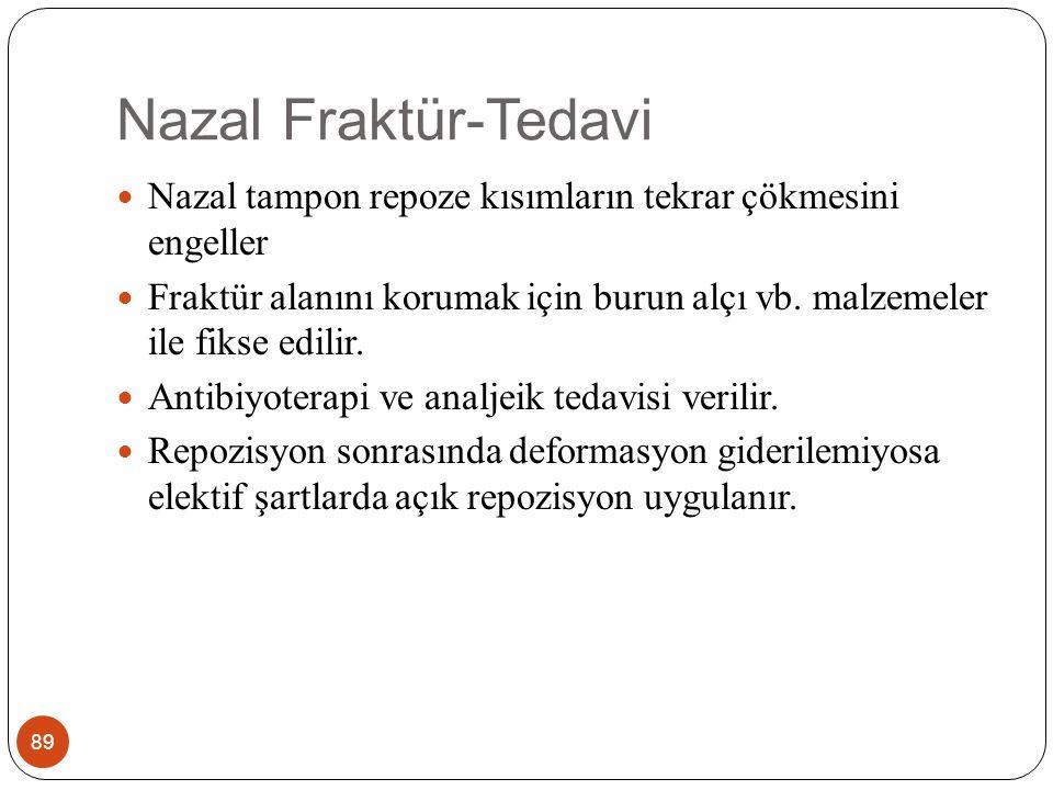 Nazal Fraktür-Tedavi 89 Nazal tampon repoze kısımların tekrar çökmesini engeller Fraktür alanını korumak için burun alçı vb.