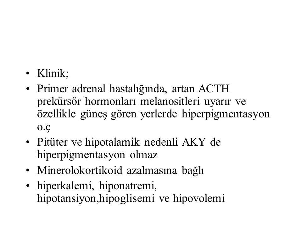 Klinik; Primer adrenal hastalığında, artan ACTH prekürsör hormonları melanositleri uyarır ve özellikle güneş gören yerlerde hiperpigmentasyon o.ç Pitü