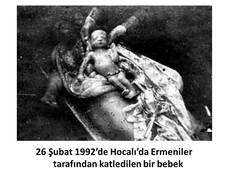 26 Şubat 1992'de Hocalı'da Ermeniler tarafından katledilen bir bebek