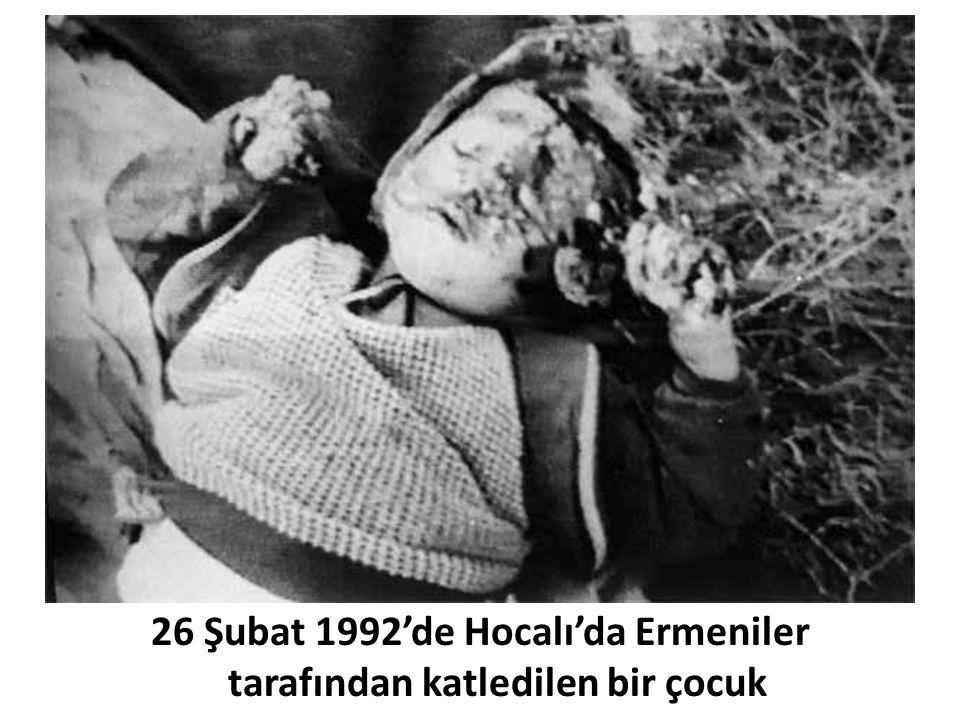 26 Şubat 1992'de Hocalı'da Ermeniler tarafından katledilen bir çocuk