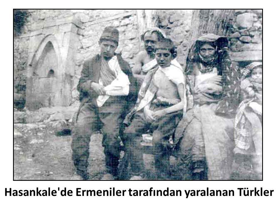 Hasankale'de Ermeniler tarafından yaralanan Türkler