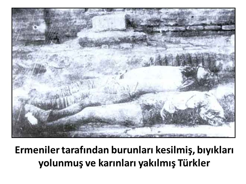 Ermeniler tarafından burunları kesilmiş, bıyıkları yolunmuş ve karınları yakılmış Türkler
