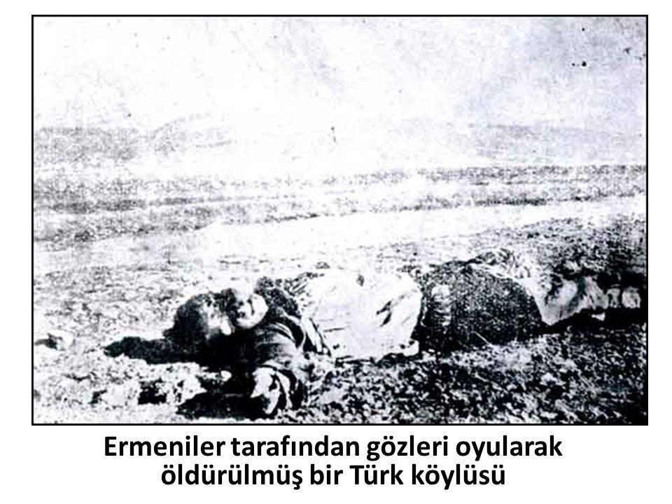 Ermeniler tarafından gözleri oyularak öldürülmüş bir Türk köylüsü