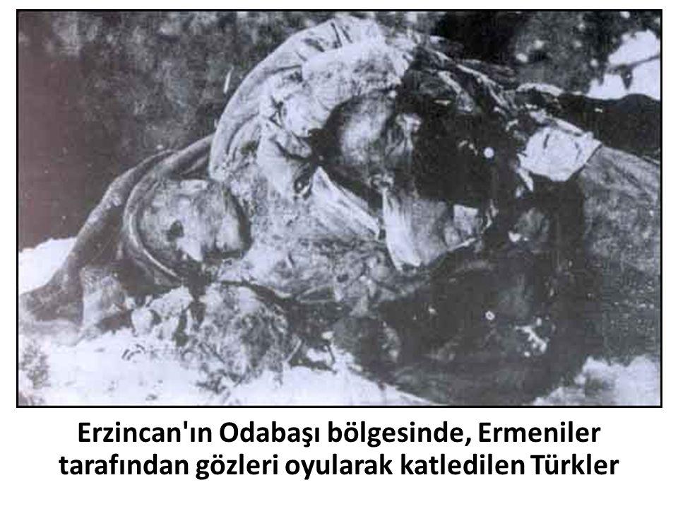 Erzincan'ın Odabaşı bölgesinde, Ermeniler tarafından gözleri oyularak katledilen Türkler