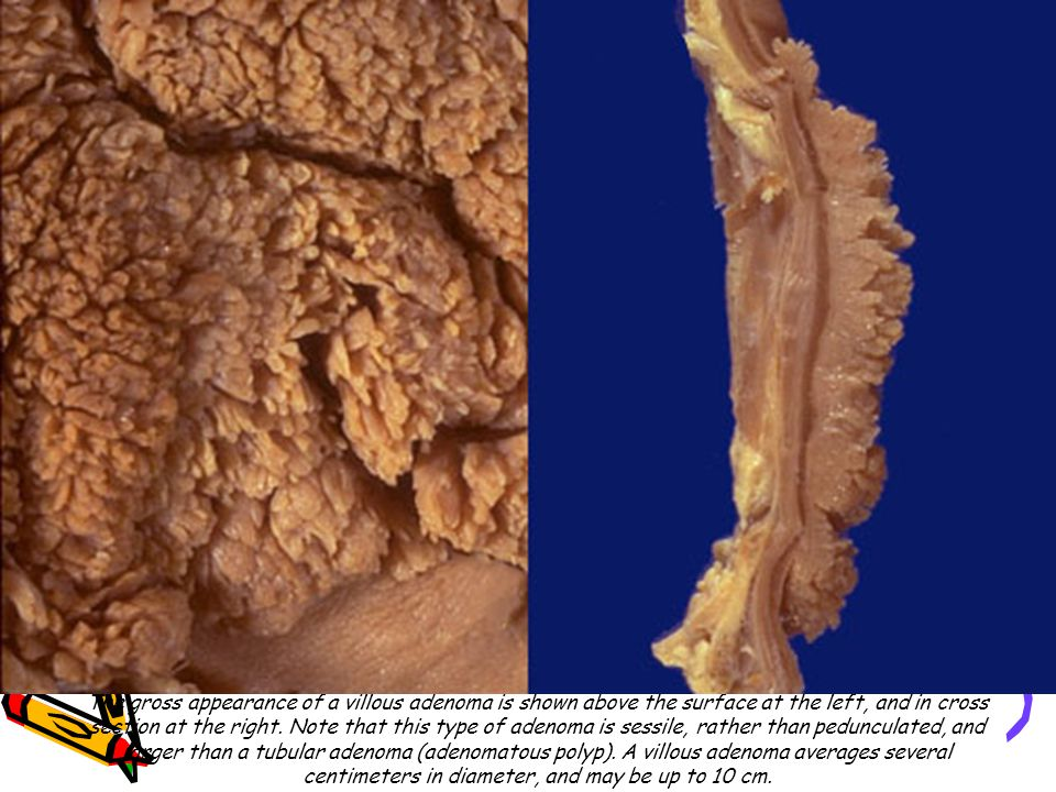 The gross appearance of a villous adenoma is shown above the surface at the left, and in cross section at the right. Note that this type of adenoma is