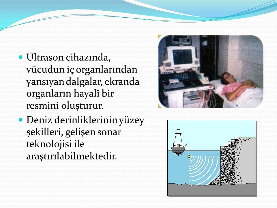 Ultrason cihazında, vücudun iç organlarından yansıyan dalgalar, ekranda organların hayalî bir resmini oluşturur. Deniz derinliklerinin yüzey şekilleri