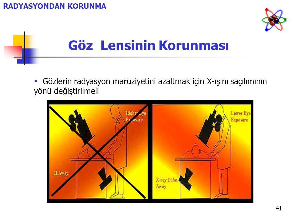 41  Gözlerin radyasyon maruziyetini azaltmak için X-ışını saçılımının yönü değiştirilmeli RADYASYONDAN KORUNMA Göz Lensinin Korunması