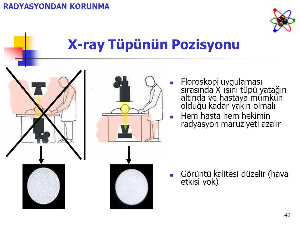 42 X-ray Tüpünün Pozisyonu Floroskopi uygulaması sırasında X-ışını tüpü yatağın altında ve hastaya mümkün olduğu kadar yakın olmalı Hem hasta hem heki
