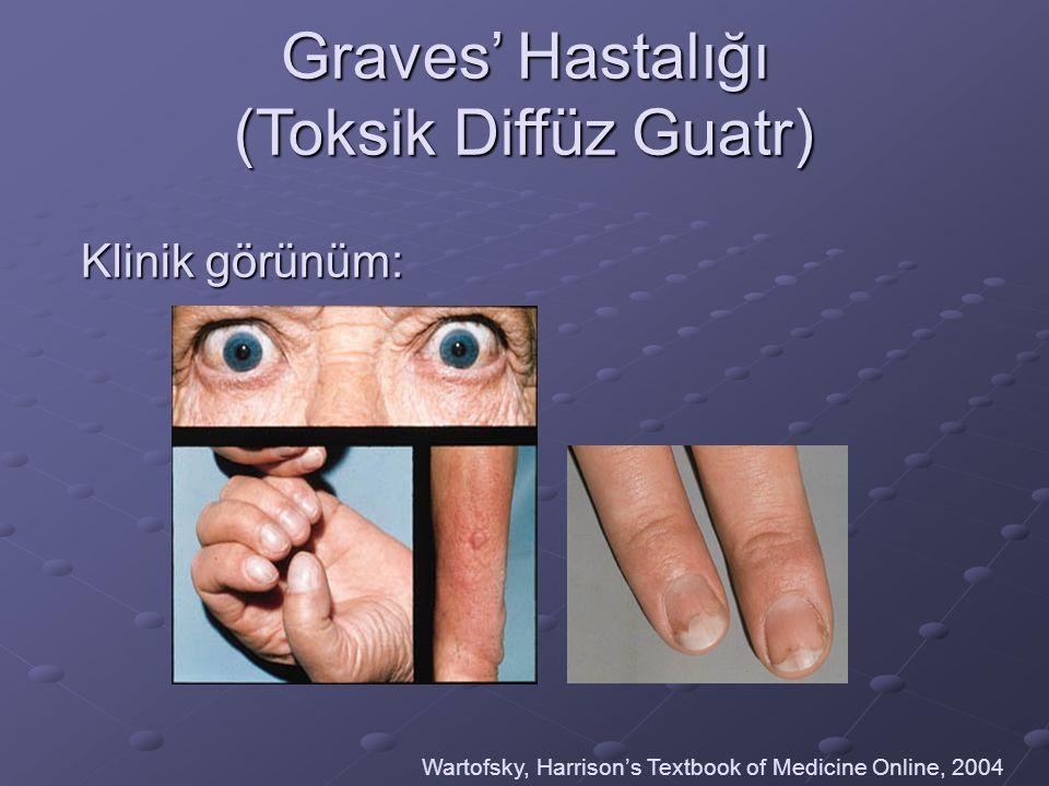 Graves' Hastalığı (Toksik Diffüz Guatr) Klinik görünüm: Wartofsky, Harrison's Textbook of Medicine Online, 2004