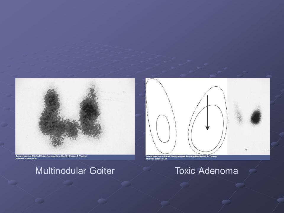 Multinodular GoiterToxic Adenoma