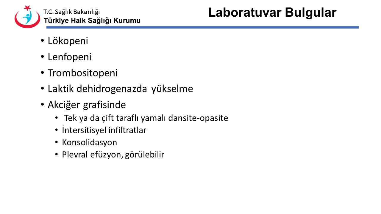T.C. Sağlık Bakanlığı Türkiye Halk Sağlığı Kurumu T.C. Sağlık Bakanlığı Türkiye Halk Sağlığı Kurumu Klinik Belirti ve Bulgular Klinik spektrum; Asempt