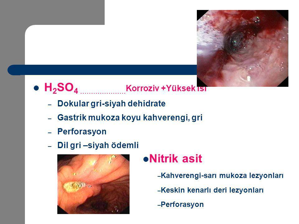 H 2 SO 4..................... Korroziv +Yüksek ısı – Dokular gri-siyah dehidrate – Gastrik mukoza koyu kahverengi, gri – Perforasyon – Dil gri –siyah