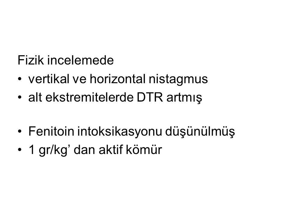 Fizik incelemede vertikal ve horizontal nistagmus alt ekstremitelerde DTR artmış Fenitoin intoksikasyonu düşünülmüş 1 gr/kg' dan aktif kömür