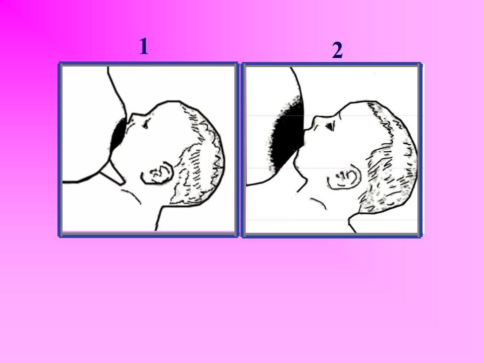 MEMEYE DOĞRU YERLEŞTİRDİĞİNİ NASIL ANLARSIN ? ☻ Emerken şapırtı sesi duyulması ya da yanakların içeri çekilmesi genellikle bebeğin yalnızca meme ucunu