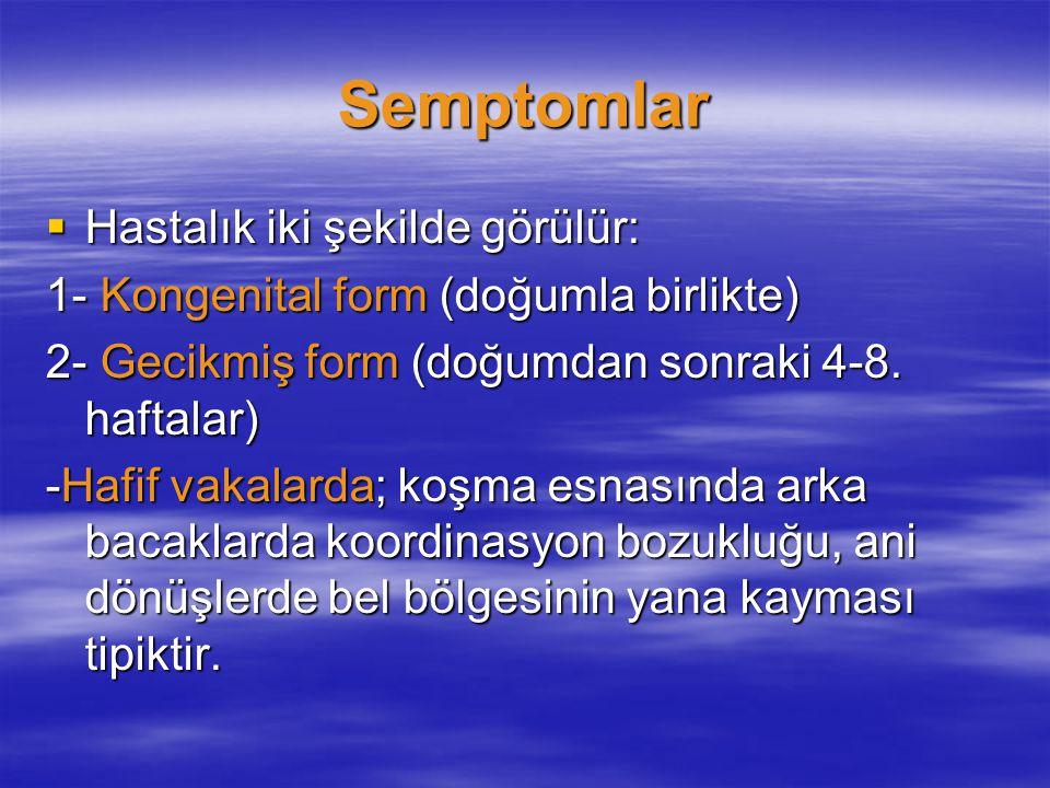 Semptomlar  Hastalık iki şekilde görülür: 1- Kongenital form (doğumla birlikte) 2- Gecikmiş form (doğumdan sonraki 4-8. haftalar) -Hafif vakalarda; k