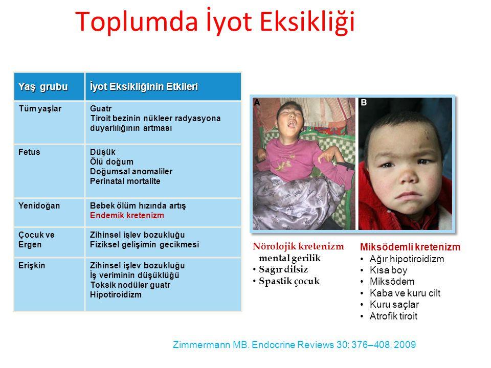 Yaş grubu İyot Eksikliğinin Etkileri Tüm yaşlarGuatr Tiroit bezinin nükleer radyasyona duyarlılığının artması FetusDüşük Ölü doğum Doğumsal anomaliler Perinatal mortalite YenidoğanBebek ölüm hızında artış Endemik kretenizm Çocuk ve Ergen Zihinsel işlev bozukluğu Fiziksel gelişimin gecikmesi ErişkinZihinsel işlev bozukluğu İş veriminin düşüklüğü Toksik nodüler guatr Hipotiroidizm Zimmermann MB.