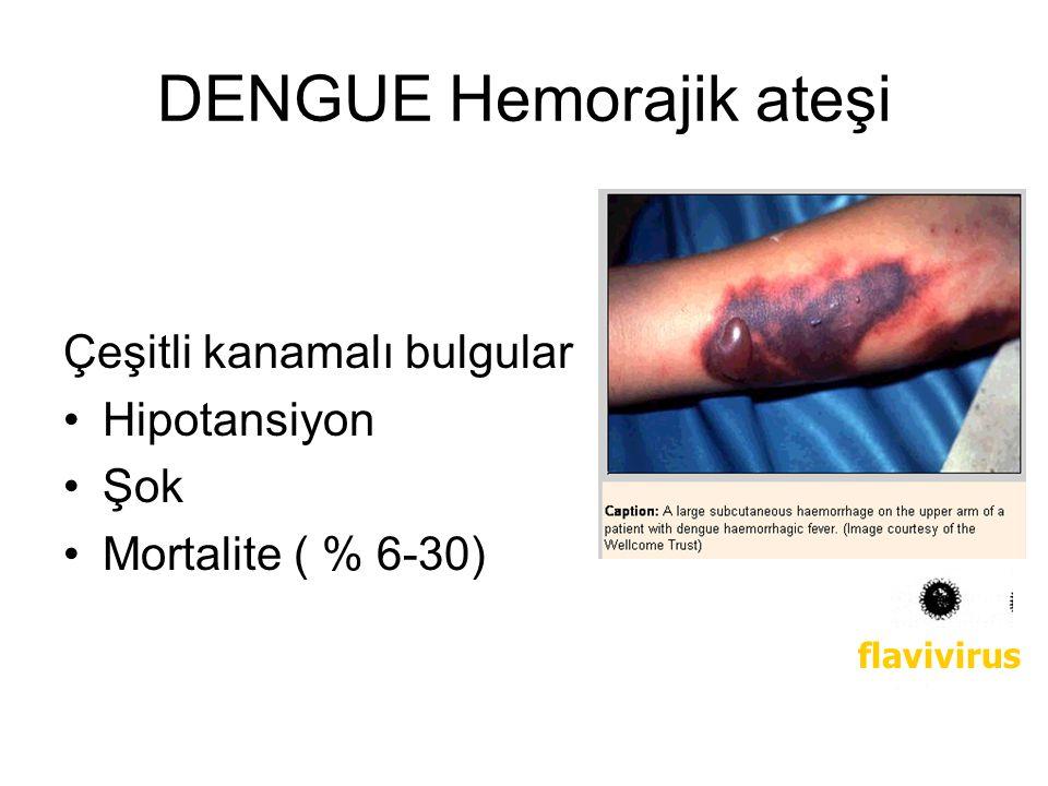 DENGUE Hemorajik ateşi Çeşitli kanamalı bulgular Hipotansiyon Şok Mortalite ( % 6-30) flavivirus