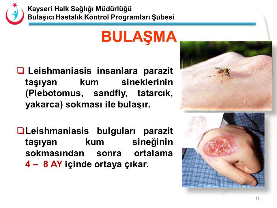  Leishmaniasis insanlara parazit taşıyan kum sineklerinin (Plebotomus, sandfly, tatarcık, yakarca) sokması ile bulaşır.  Leishmaniasis bulguları par