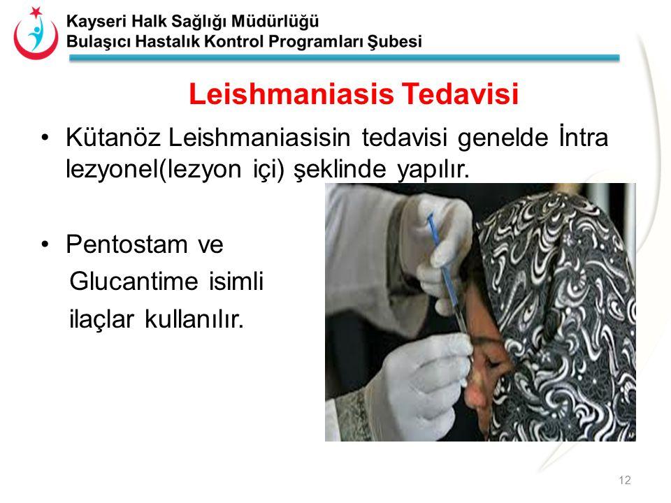 Leishmaniasis Tedavisi Kütanöz Leishmaniasisin tedavisi genelde İntra lezyonel(lezyon içi) şeklinde yapılır. Pentostam ve Glucantime isimli ilaçlar ku