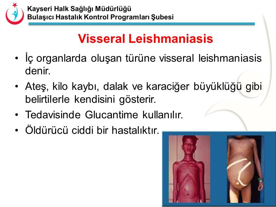 Visseral Leishmaniasis 15 İç organlarda oluşan türüne visseral leishmaniasis denir. Ateş, kilo kaybı, dalak ve karaciğer büyüklüğü gibi belirtilerle k