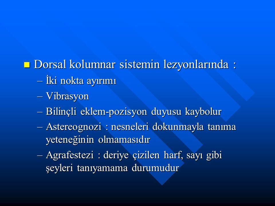 Dorsal kolumnar sistemin lezyonlarında : Dorsal kolumnar sistemin lezyonlarında : –İki nokta ayırımı –Vibrasyon –Bilinçli eklem-pozisyon duyusu kaybol
